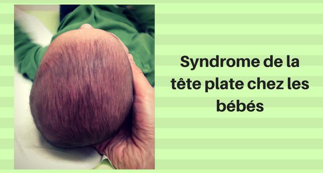 Syndrome De La Tête Plate Chez Les Bébés: Comment Le Détecter [et Surtout L'éviter]