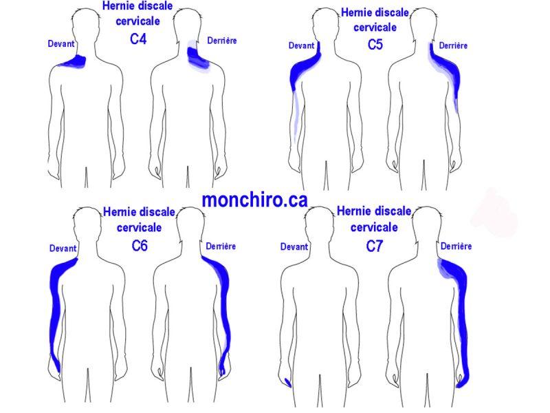 monchiro-hernie-discale-explication-hernie-cervicale