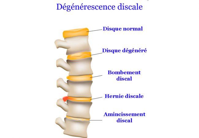 monchiro-torticolis-degenerescence discale