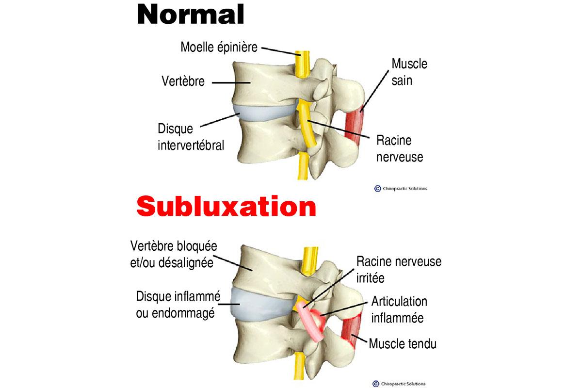 Qu'est-ce qu'une subluxation vertébrale?