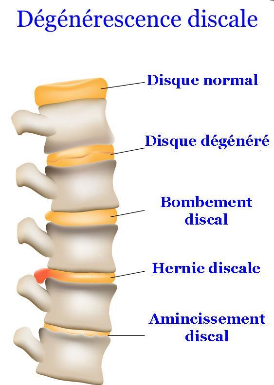 MonChiro cou texto neck chiropratique degeneresence 3