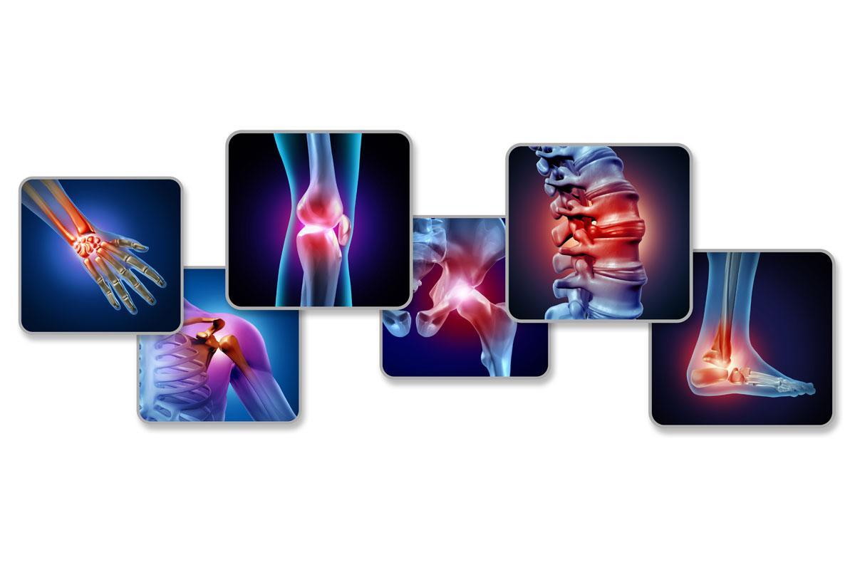 Des Solutions Naturelles Pour Mieux Gérer Les Douleurs Chroniques